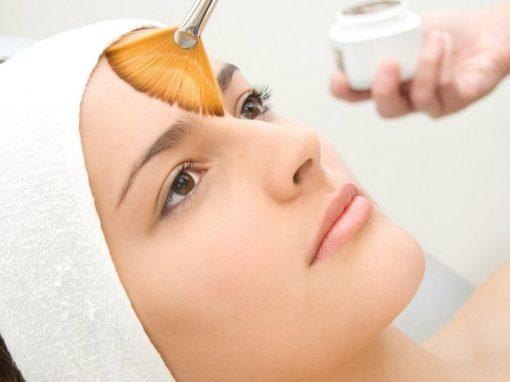 Ретиноевый пилинг кожи лица
