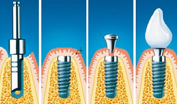 Имплантация зубов: этапы, время, цена