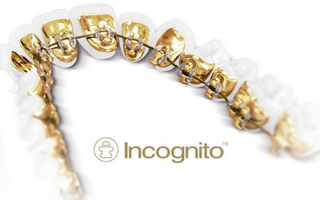 Невидимые брекеты- «Inkognito»